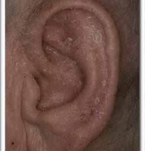 экзема в ушах лечение