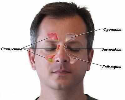 Как распознать и вылечить синусит?