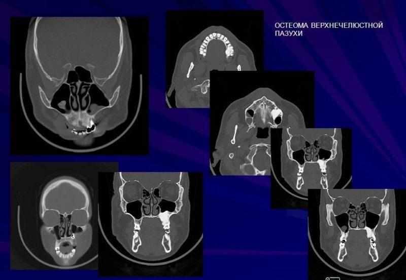 новообразование в гайморовой пазухе симптомы и лечение