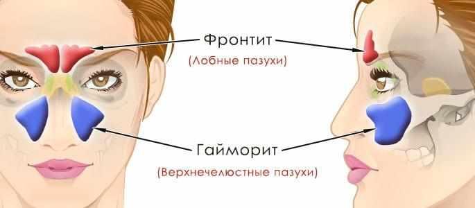 фронтит и гайморит лечение