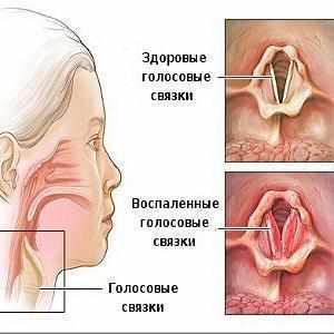 причины и лечение сиплого голоса и кашля