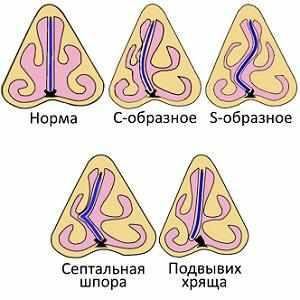 симптомы и лечение искривления носовой перегородки