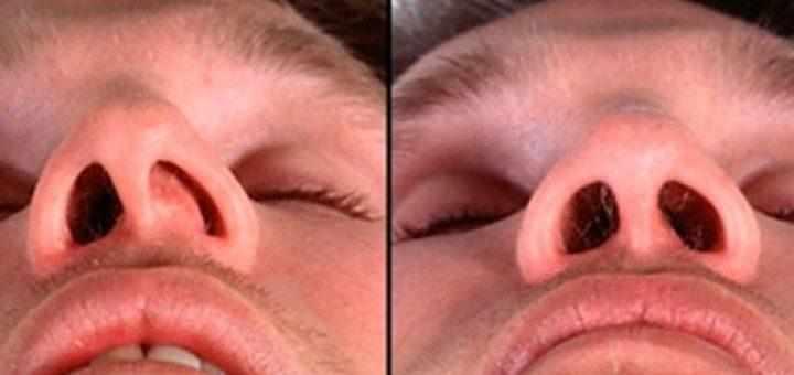операция по выпрямлению носовой перегородки