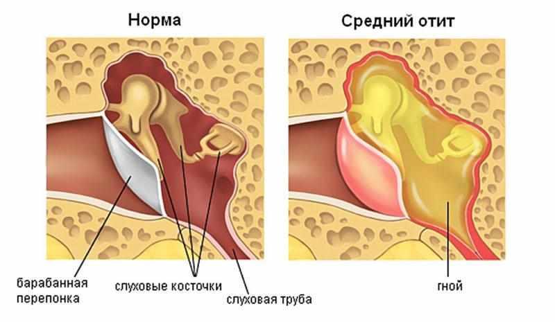 Серозный отит уха