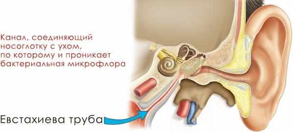 профилактика гайморита в домашних условиях