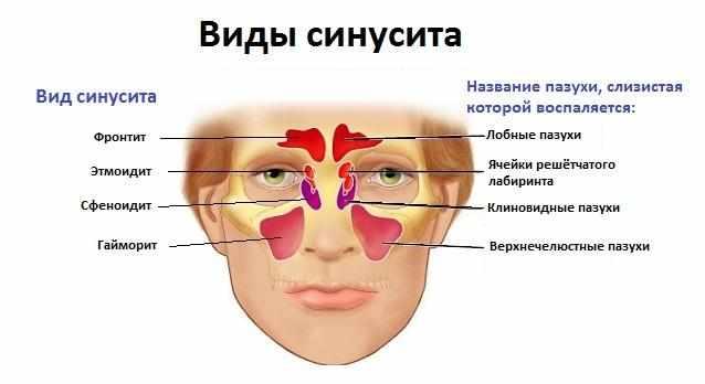 Как лечить верхнечелюстной синусит?