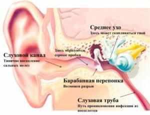-лопнула перепонка в ухе признаки и симптомы