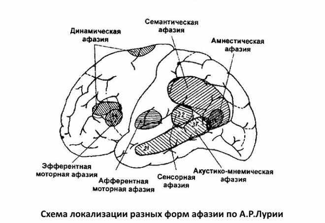 Схема локализации афазии по Лурии