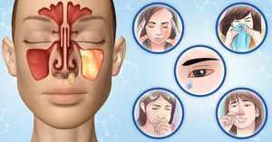 Препараты для лечения синусита