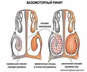 Проявление вазомоторного ринита