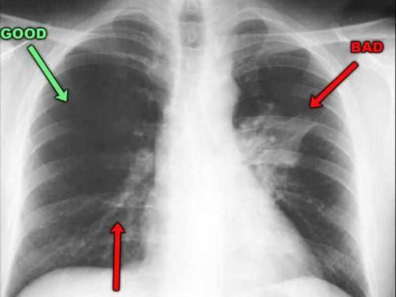 Как проявляется заболевание пневмония