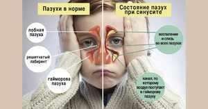 Способ промывания носа