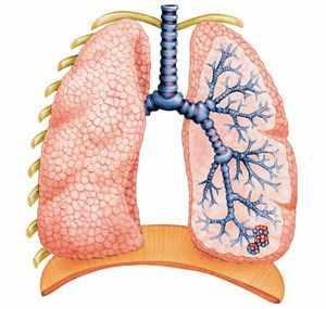 Обострение при пневмонии