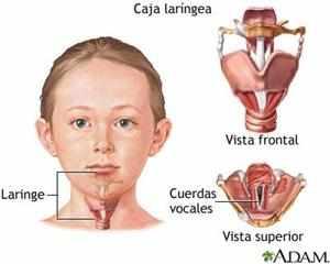 Симптомы острого стенезирующего ларинготрахеита у ребенка