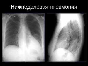 Нижнедолевая правосторонняя пневмония