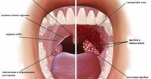 Чем лечить миндалины