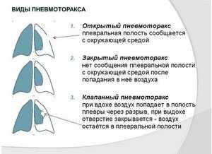 Виды пневмоторакса и методы диагностики