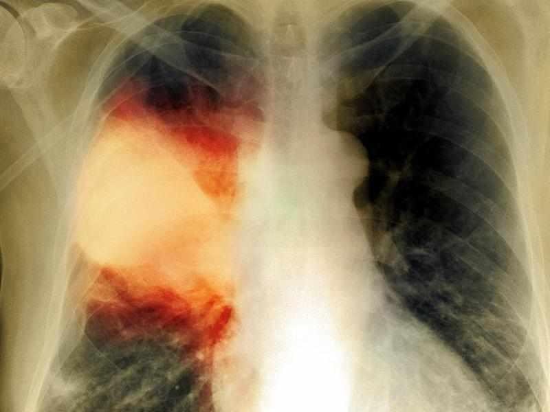 Показатели пневмонии