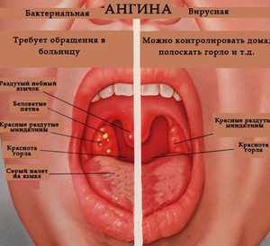 Ангина – заболевание горла