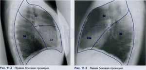 Строение легких на рентгене