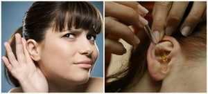 Способ промывания ушей