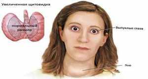 Причины увеличения щитовидки