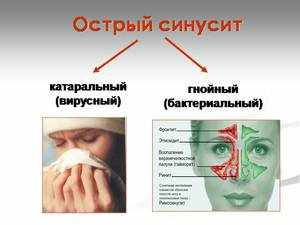 Заболевание области носовых пазух