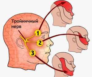 Какие признаки при воспалении нерва