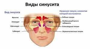 Виды этмоидита