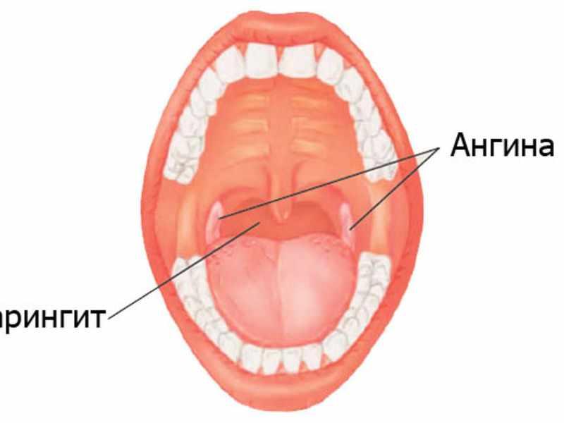 Возможные осложнения при ангине