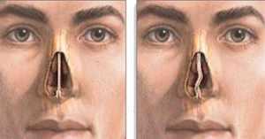 Вазотомия исправление перегородки