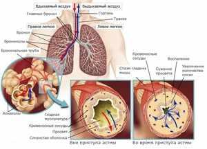 Почему возникает бронхиальная астма