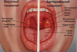 Больные миндалины