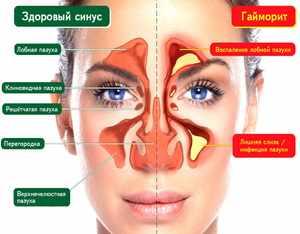 Воспаленая полость носа
