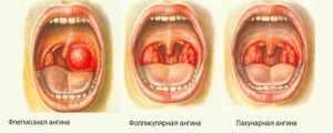 Как распознать, какой вид ангины у больного
