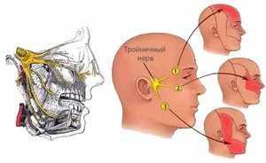 Причины симптомы и лечение невралгии
