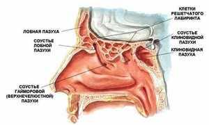 Острый этмоидит