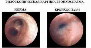 Эндоскопия бронхоспазма