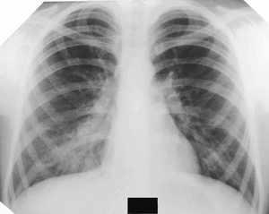 Лечение заболевания пневмонии