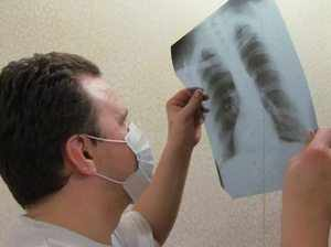 Туберкулез на рентгеновском снимке