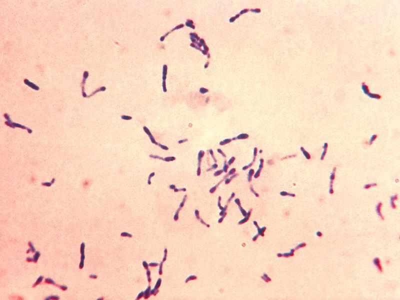 Дифтерийная бактерия под микроскопом
