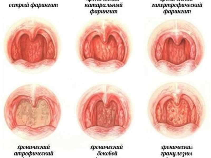 Смптомы фарингита