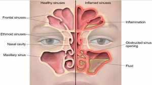Как проявляется риновирусная инфекция