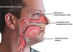 Аллергический ринит на фото