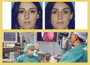 Исправление носа - пластическая хирургия