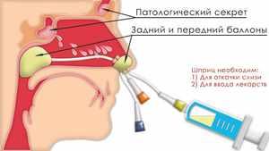 Схема ямик-катетера для носа - что это такое