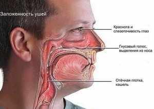 Аллергический ринит и его лечение