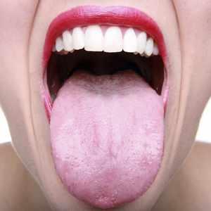 Диагностика стафилококка