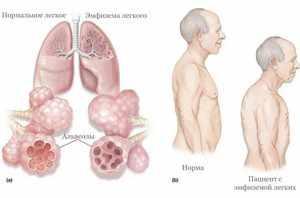 Как проявляется эмфизема легких