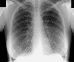 Что показано на снимке флюрографии
